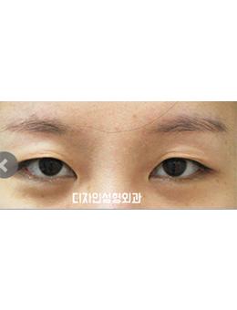 韩国釜山design整形医院眼部手术对比案例_术前