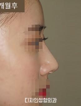 韩国釜山design整形医院驼峰鼻矫正手术案例_术后