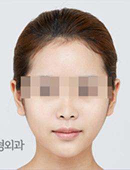 韩国本爱整形外科轮廓手术案例