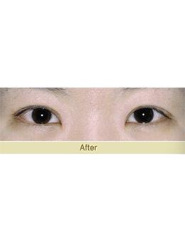 韩国JAESSIA整形外科眼综合手术对比案例_术后