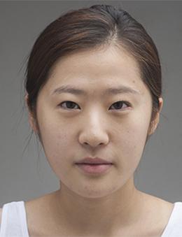 韩国new style整形外科眼鼻综合案例对比_术前