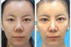 韩国江南三星朴英进做隆鼻及鼻修复真人效果如何?