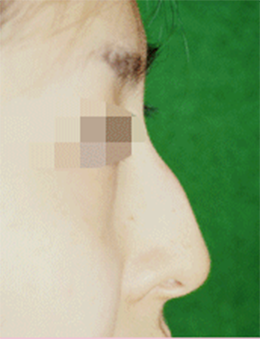 韩国BAO整形外科驼峰鼻矫正手术对比案例