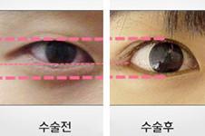 小吊眼那么丑,韩国天鹅Swan整形做双眼皮后效果美炸了