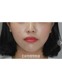 韩国釜山design整形医院面部吸脂手术对比案例