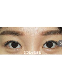 韩国釜山design整形医院眼部手术对比案例_术后