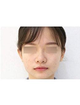 韩国inno整形医院玻尿酸隆鼻案例对比图