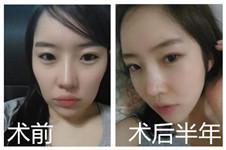 真人爆料:在韩国佰诺佰琪做轮廓手术后悔?看完日记再说