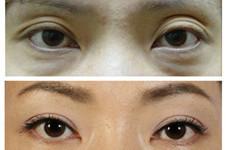 双眼皮形状不对称怎么救?韩国BIO整形曹仁昌这样做