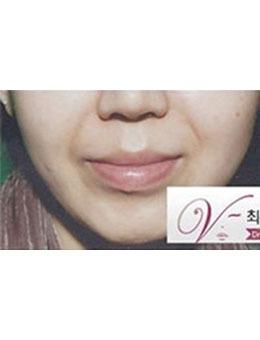 韩国dr.choi注射肉毒素祛法令纹案例对比