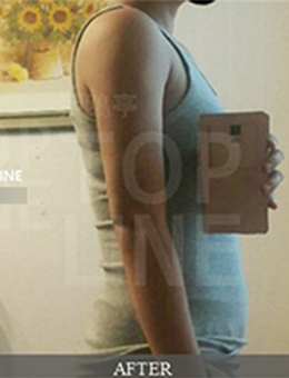 韩国狎鸥亭topline吸脂医院手臂吸脂案例对比_术后