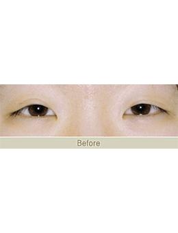 韩国JAESSIA整形外科眼综合手术对比案例_术前