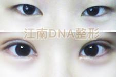 韩国江南DNA金沅硕做开眼角手术真的不粘合?不回缩?