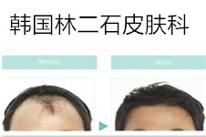 林二石皮肤科植发好吗?真人案例能和多娜整形比吗?