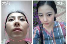 整容日记分享:韩国原辰做颧骨、下颌角手术恢复效果