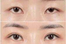 严重大小眼怎么整形,手术矫正成功率有多高?