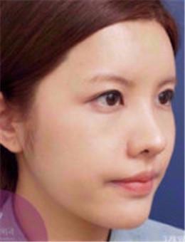 韩国友珍整形-韩国友珍医院全脸面部填充案例图