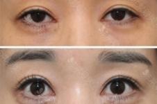 韩国哪些医院做双眼皮修复效果好,成功率有多大?