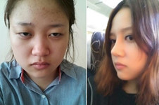 韩国AHN整形安晟凤是做鼻子好医生吗?与金载勋比如何?