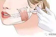 韩国医院面部除皱手术方法有哪些?价格分别是多少?