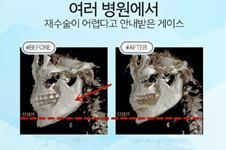 轮廓手术失败颧骨不愈合、有骨缝怎么办?多久能修复?