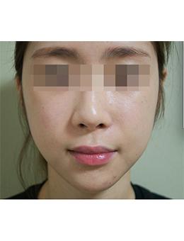 韩国jstar整形外科面部脂肪填充手术对比案例_术后