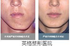 韩国英格让牙医金明镇做轮廓手术?真的是胡闹吗?