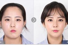 韩国COOKI和菲斯莱茵做面部轮廓都有什么优势?该怎么选?