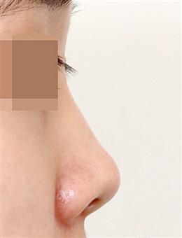 韩国凯伦秀鼻综合整形案例