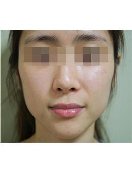 韩国jstar整形外科面部脂肪填充手术对比案例_术前