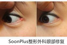 开了眼角后眼睛变丑了,选择韩国soonplus或gio做眼部修复行吗