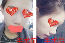 韓國肋軟骨隆鼻多少錢,哪些醫院手術效果比較好?