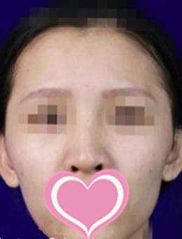 韩国世民整形外科面部脂肪填充手术对比案例_术前