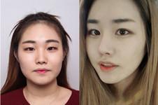 韩国本爱整形做眼睛怎么样?案例图合辑看你是否喜欢!
