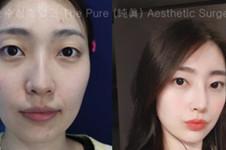 自体软骨隆鼻的优点分析,韩国纯真整形cocoline医院这么说