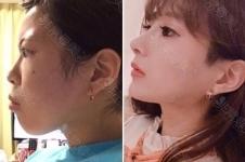 凸嘴和双鄂手术区别有哪些,韩国医院如何矫正?