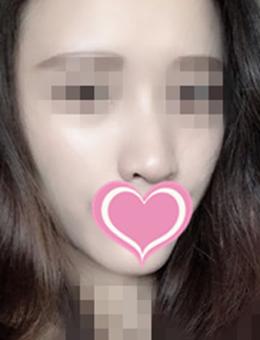 韩国世民整形外科面部脂肪填充手术对比案例_术后