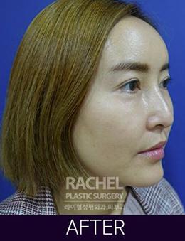 韩国蕾切尔整形外科面部脂肪填充手术对比案例_术后