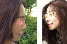 cowell在韩国做鼻子到底怎么样?听说有负面真人案例好看吗