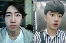 韩国GNG整形案例曝光!双鄂+歪鼻矫正术后改变这么大!