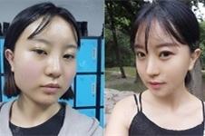 韩国GNG做轮廓眼鼻手术怎么样,医院真人案例效果如何?
