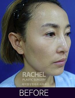 韩国蕾切尔整形外科面部脂肪填充手术对比案例_术前