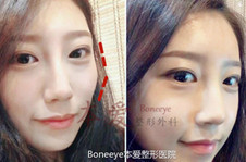 韩国本爱轮廓手术案例:颧骨缩小术后两周变这样!