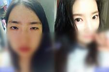 哪里做韩式双眼皮效果好?灰姑娘、BIO榜上有名!