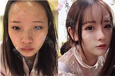 去韩国整鼻子靠谱么?出名的医院有哪些?这样选才不后悔!