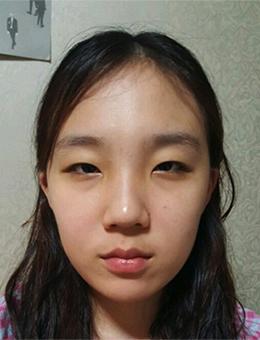 韩国乐于丽颜整形外科眼综合前后对比案例