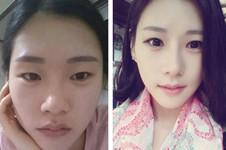 韩国Faceplus对比菲斯莱茵医院,诞生Let美人的医院是否取胜?