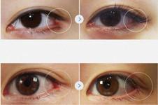 韩国眼角修复医院名单:Swan整形eve和GIO各有特色!