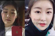 韩国下颌角手术价格PK,本爱和英格谁性价比高?