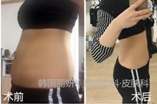 韩国丽妍K是专业吸脂整形医院吗?如何避免术后下垂?
